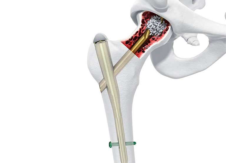 xương dài nhất của người tên là gì