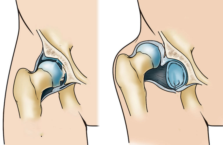 Chấn thương xương đùi