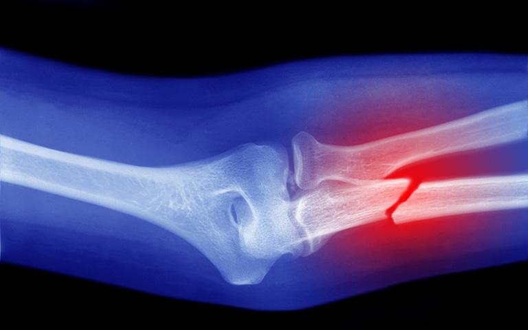 Gãy xương trụ có thể xảy ra khi té ngã dẫn đến chấn thương cẳng tay