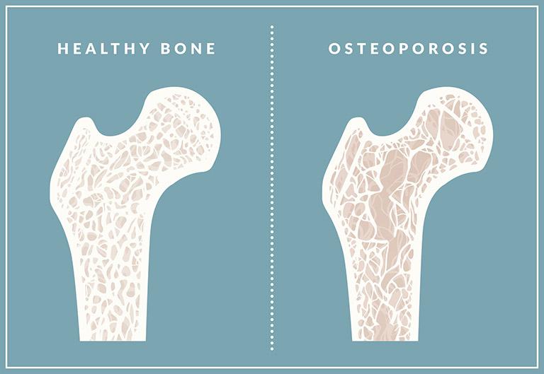 Bệnh loãng xương khiến sức khỏe, mật độ xương và chức năng của xương trụ suy giảm