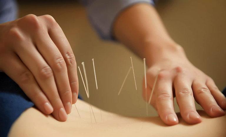 Bệnh an y học cổ truyền đau lưng