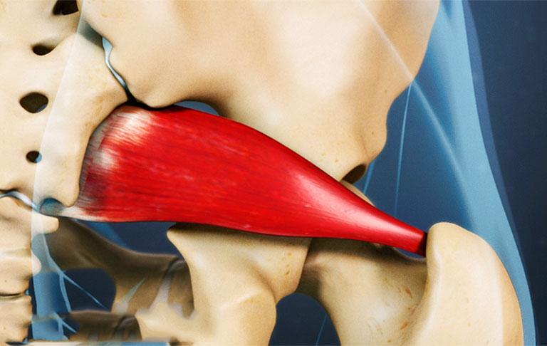 Mỏi thắt lưng ở phụ nữ