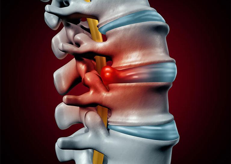 Thoát vị đĩa đệm gây đau thắt lưng