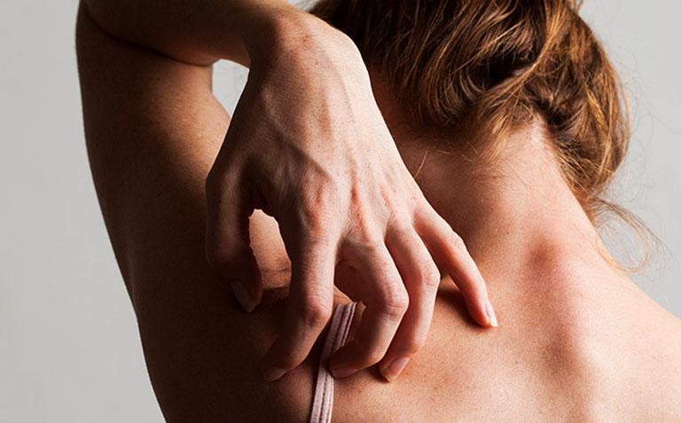 Bệnh lupus ban đỏ có ngứa không