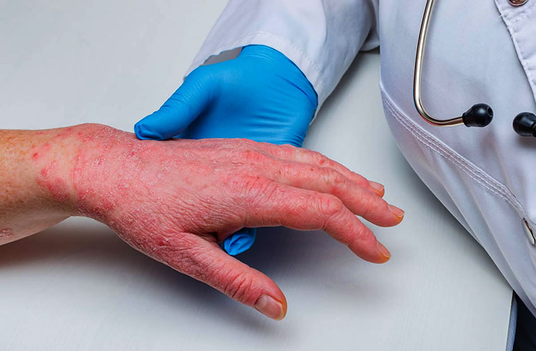 Bệnh lupus ban đỏ có lây không