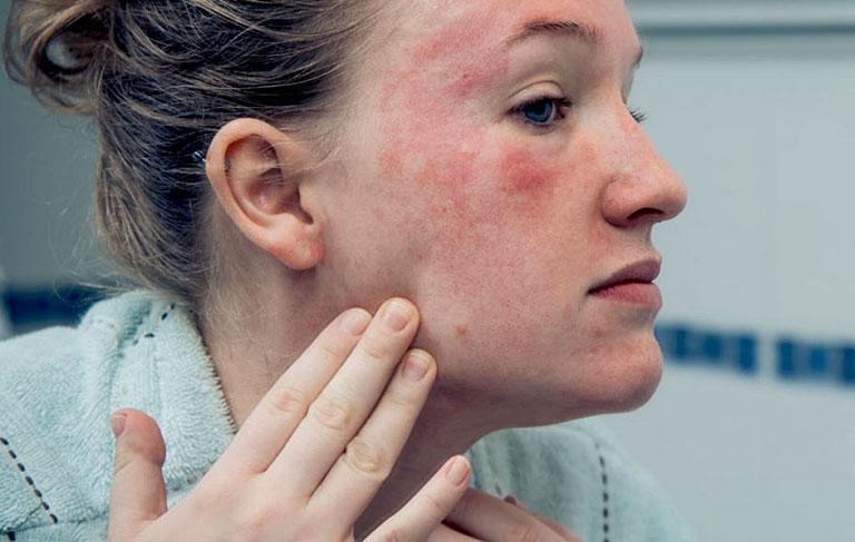 Bệnh lupus ban đỏ có chữa được không