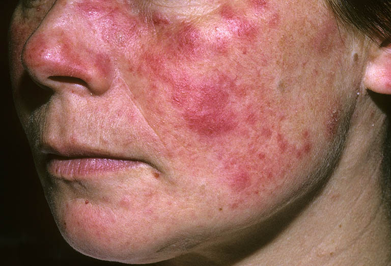 lupus ban đỏ giai đoạn cuối