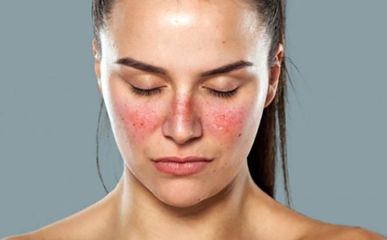 lưu ý khi chữa lupus ban đỏ bằng thuốc đông y