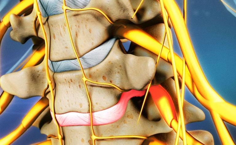 Bị chèn dây thần kinh cổ