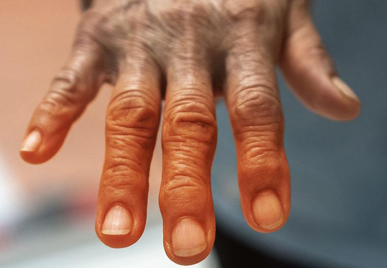 tê bàn tay là triệu chứng của bệnh gì