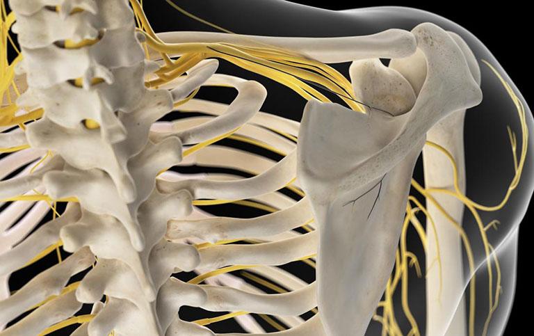Nhức xương cánh tay