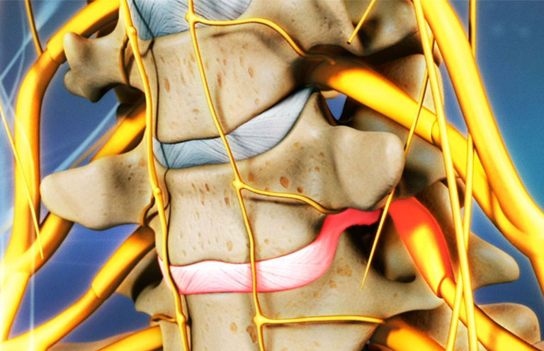 Cách nằm chữa đau cổ