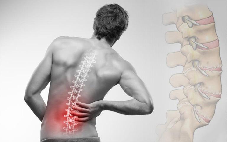 đau thắt lưng ở người trẻ là bệnh gì