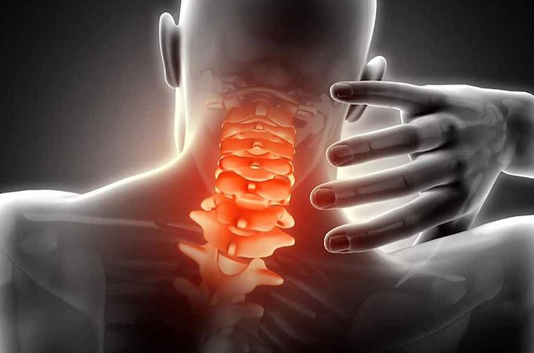nguyên nhân gây đau dây thần kinh vai gáy