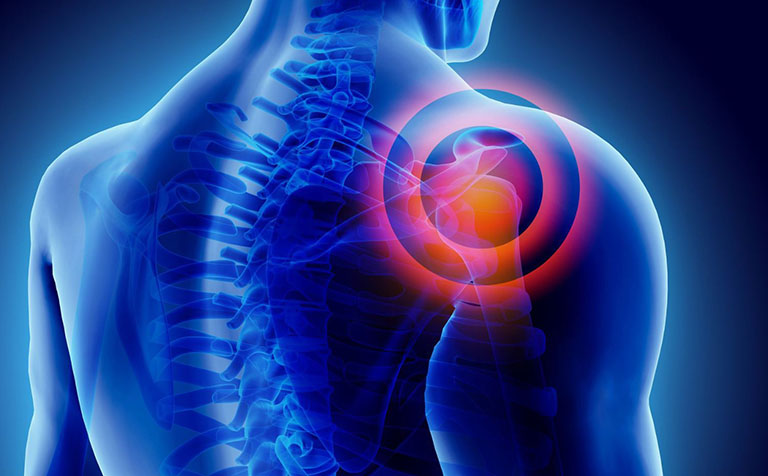 Đau khớp vai thường xảy ra sau một chấn thương va đập mạnh
