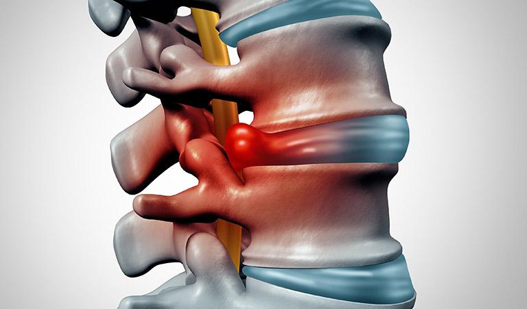 Đau lưng cấp dễ tái phát do những bệnh lý ở cột sống
