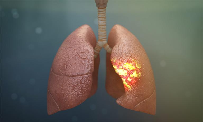 viêm phổi gây đau lưng
