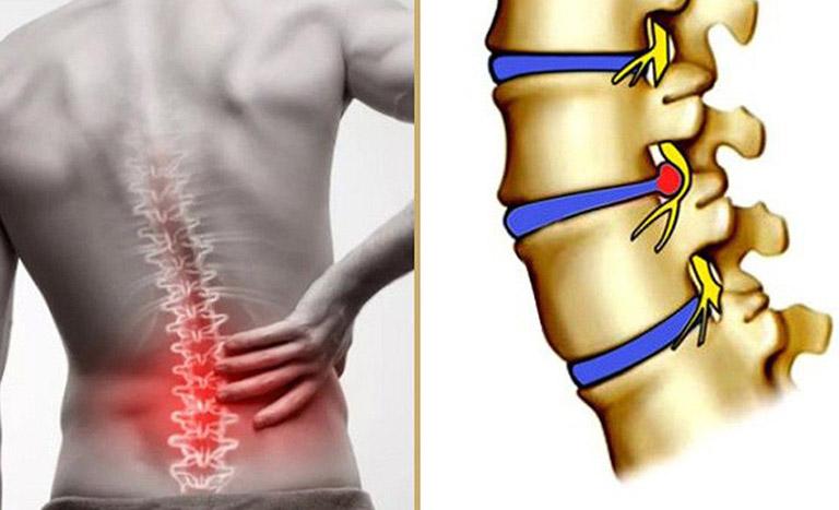 đau lưng không cúi được là bệnh gì