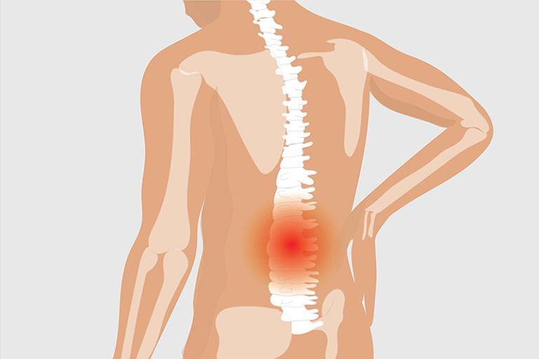 nguyên nhân gây đau lưng không cúi được