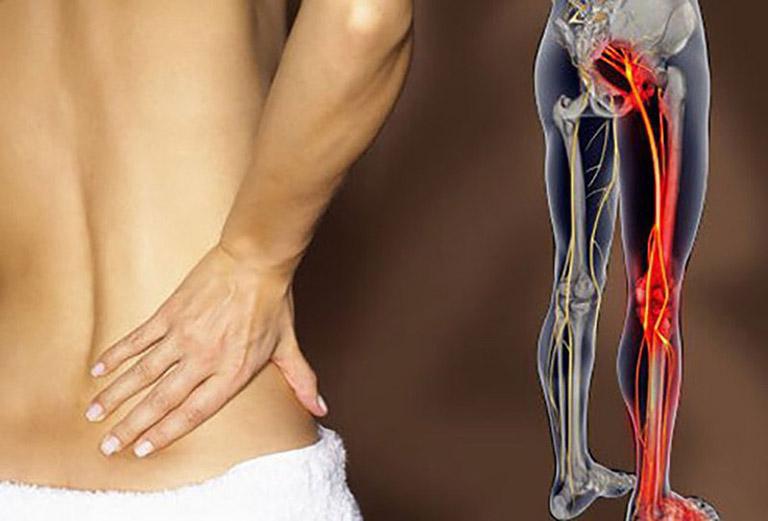 đau lưng không cúi được là bị gì