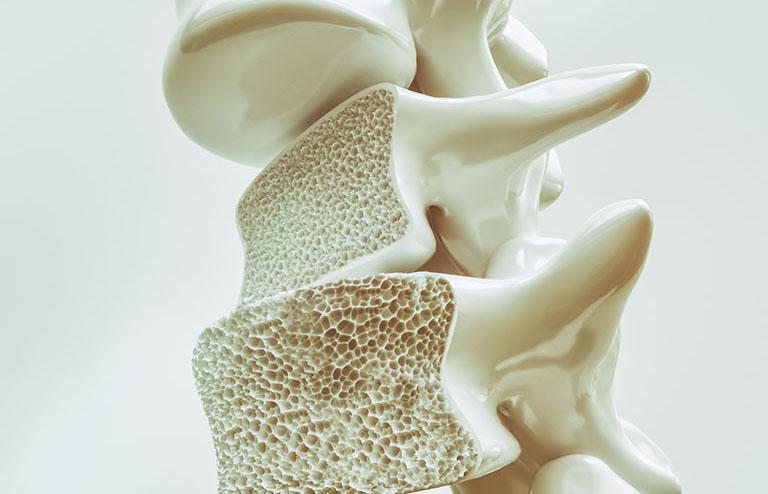đau lưng mỏi gối tê tay là bị gì