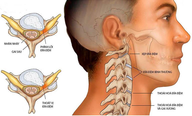 Đau sau gáy cổ thường xảy ra sau một tổn thương do thoát vị đĩa đệm cổ