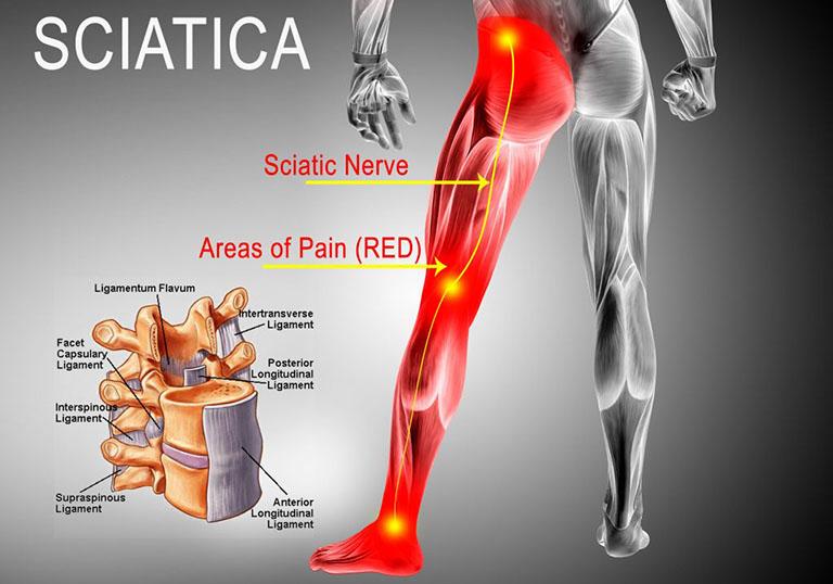 đau thắt lưng bên phải - trái lan xuống mông