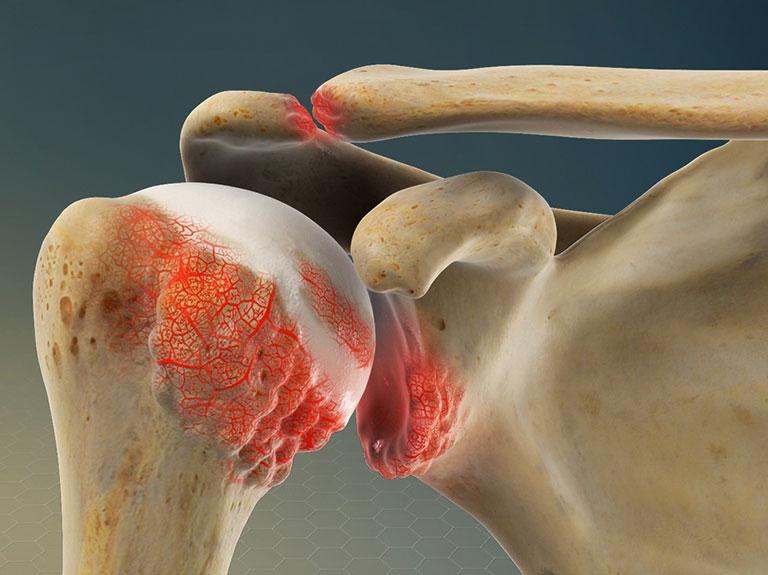 đau xương khớp vai