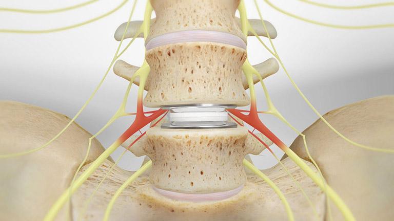 Cấy ghép đĩa đệm nhân tạo không phải là phương pháp chữa đau lưng