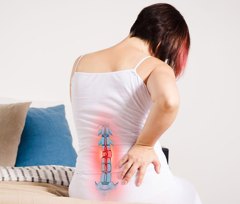 Sau cấy ghép đĩa đệm nhân tạo có thể gây trật khớp