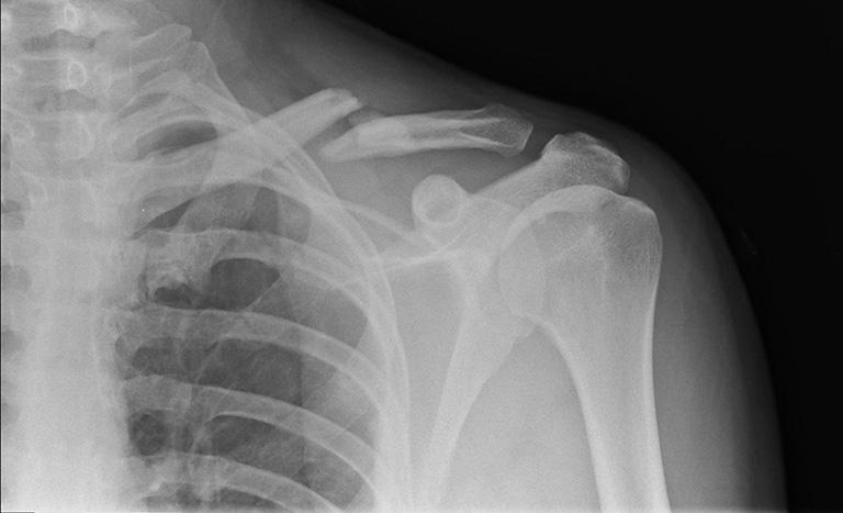hình ảnh gãy xương quai xanh