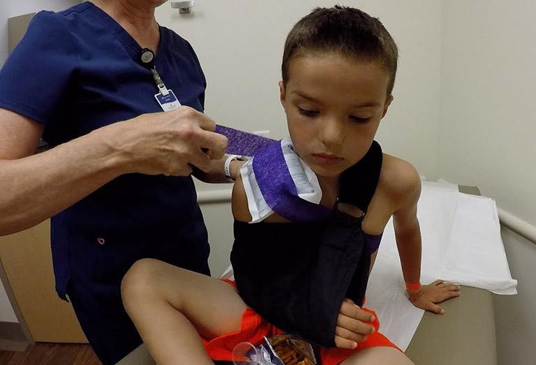 chẩn đoán gãy xương đòn ở trẻ em