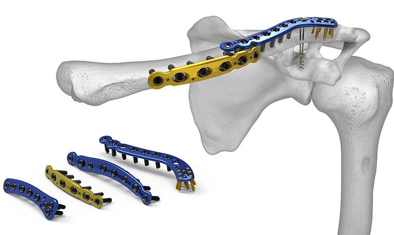 gãy xương đòn vai có phải phẫu thuật