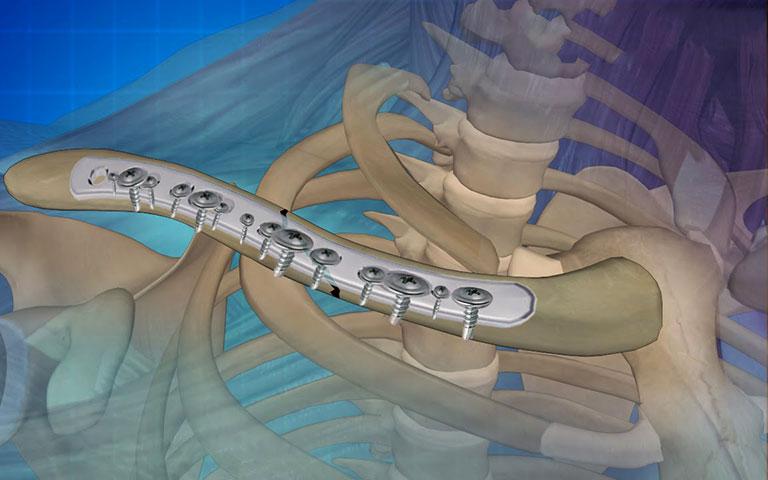 biến chứng sau mổ gãy xương đòn