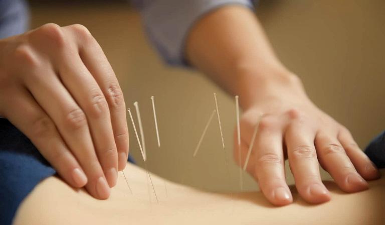 Vật lý trị liệu cũng là một giải pháp điều trị xương khớp