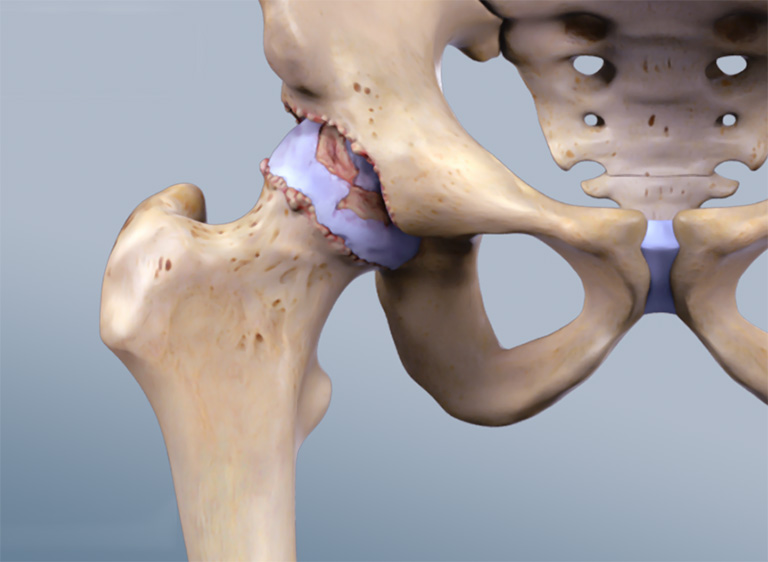 glucosamine tốt cho xương khớp