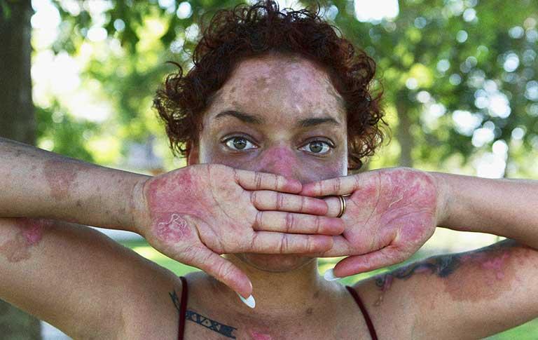 Bị lupus ban đỏ sống được bao lâu