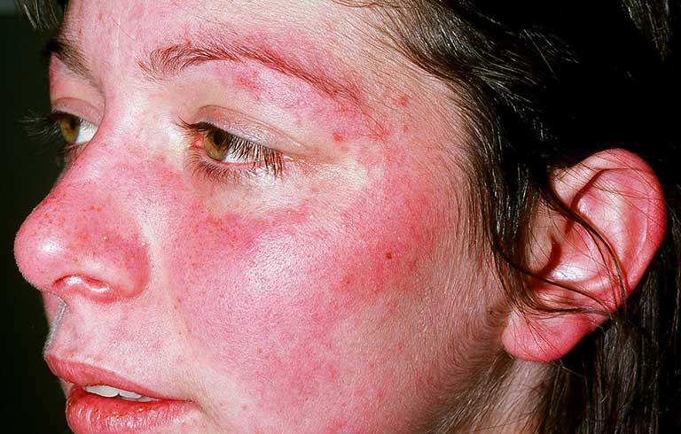 Bệnh lupus ban đỏ giai đoạn đầu