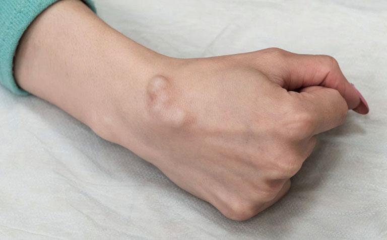 Mổ u nang bao hoạt dịch