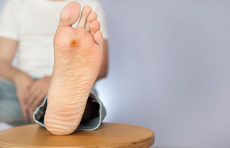 tê bì chân tay ở người tiểu đường