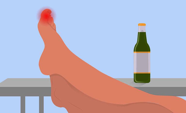 Uống rượu bị đau nhức tay