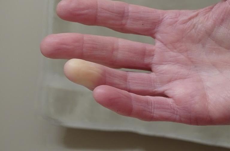 tê đầu ngón tay do bệnh gì
