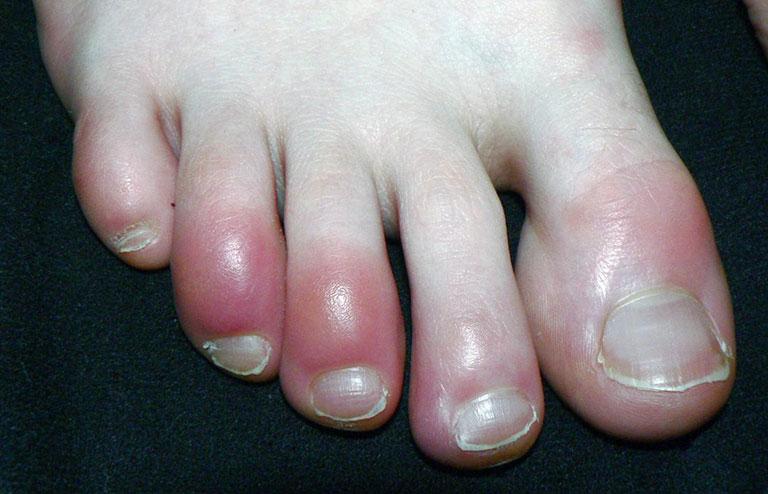 Bị tê ngón chân cái bên trái là bệnh gì
