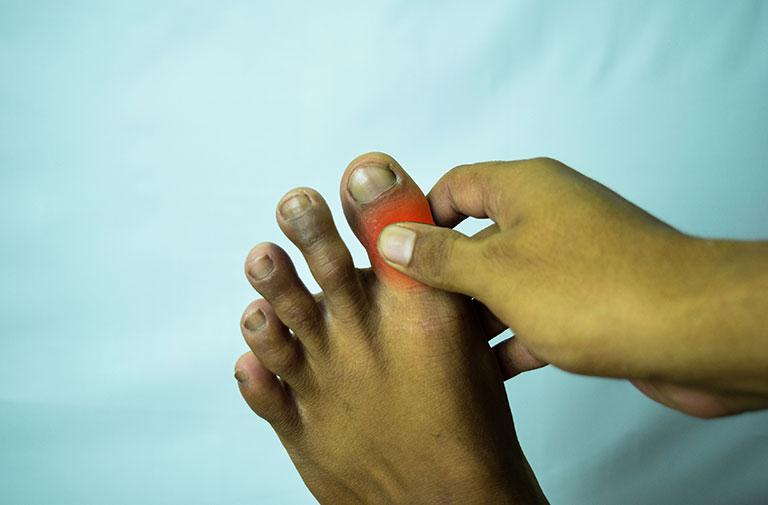 Tê đầu ngón chân cái la bệnh gì