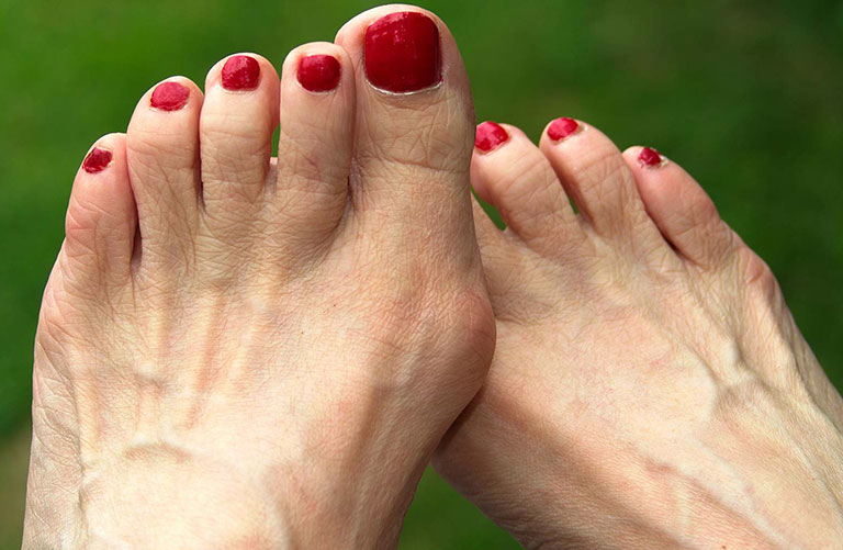 ngón chân cái bị tê mất cảm giác
