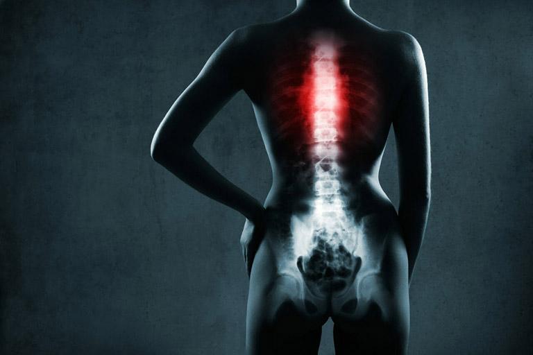 Đĩa đệm có thể đột ngột vỡ kèm theo nứt/ rách bao xơ khi chấn thương