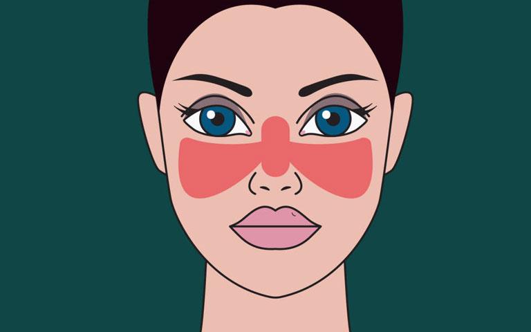 Tiêu chuẩn chẩn đoán lupus ban đỏ