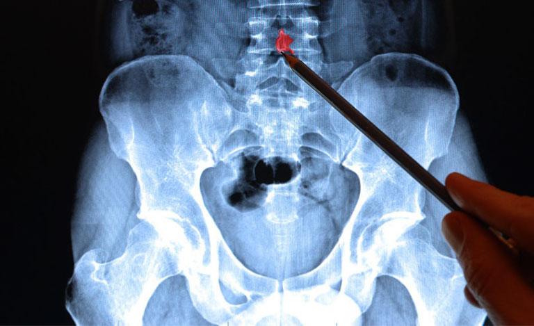 Tiêu chuẩn chẩn đoán thoái hóa cột sống thắt lưng theo ACR
