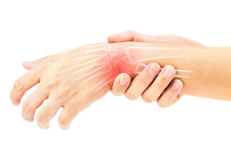 Viêm bao hoạt dịch cổ tay