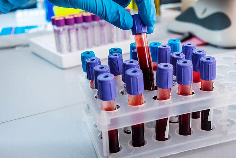 xét nghiệm viêm bao hoạt dịch dưới mỏm cùng vai